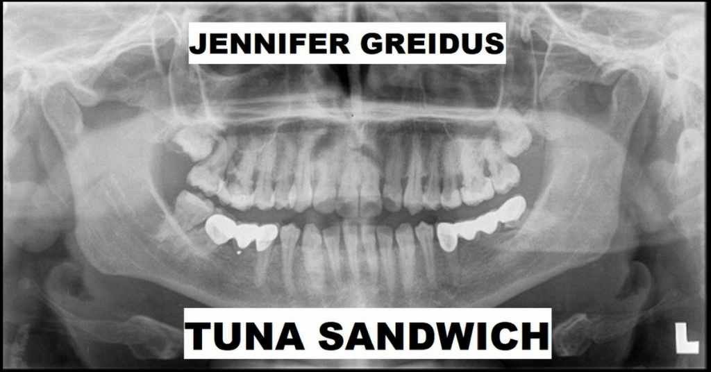 TUNA SANDWICH by Jennifer Greidus