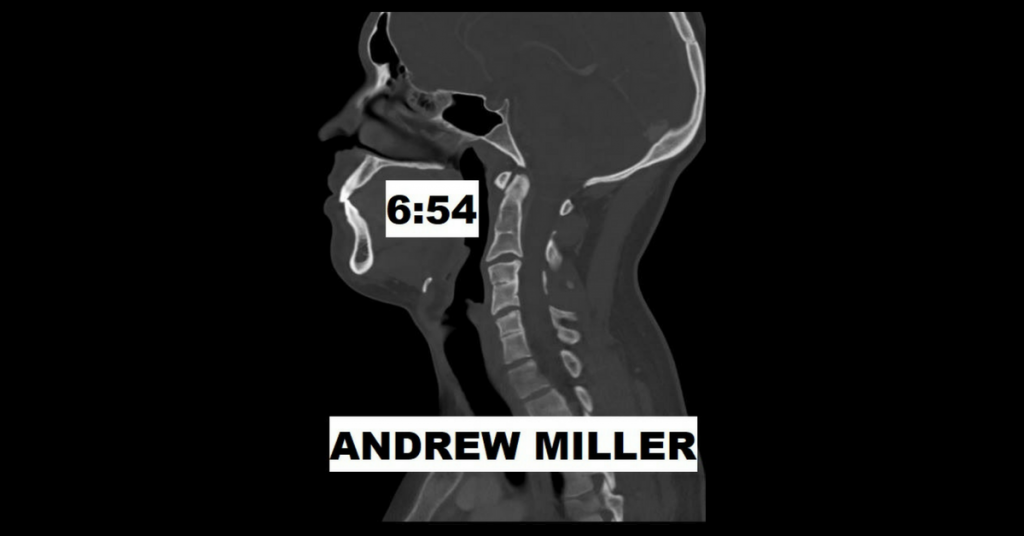 6:54 by Andrew Miller