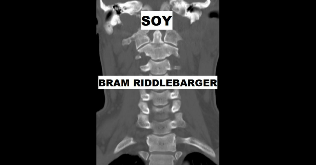 bram riddlebarger