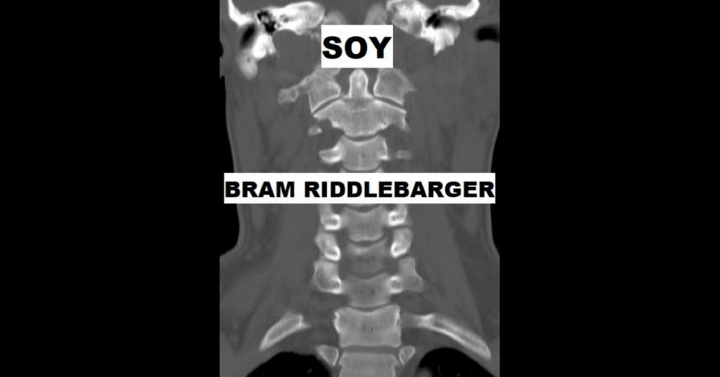 SOY by Bram Riddlebarger