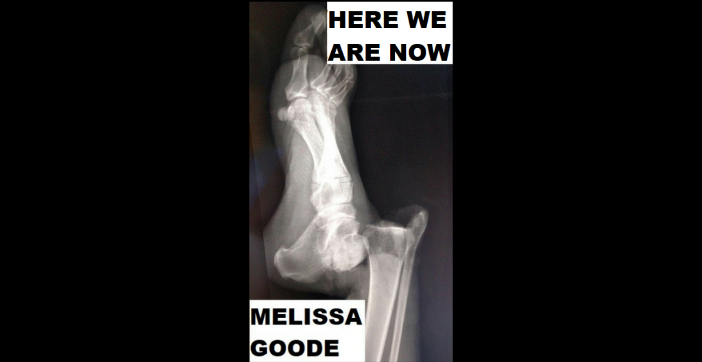 HERE WE ARE NOW by Melissa Goode