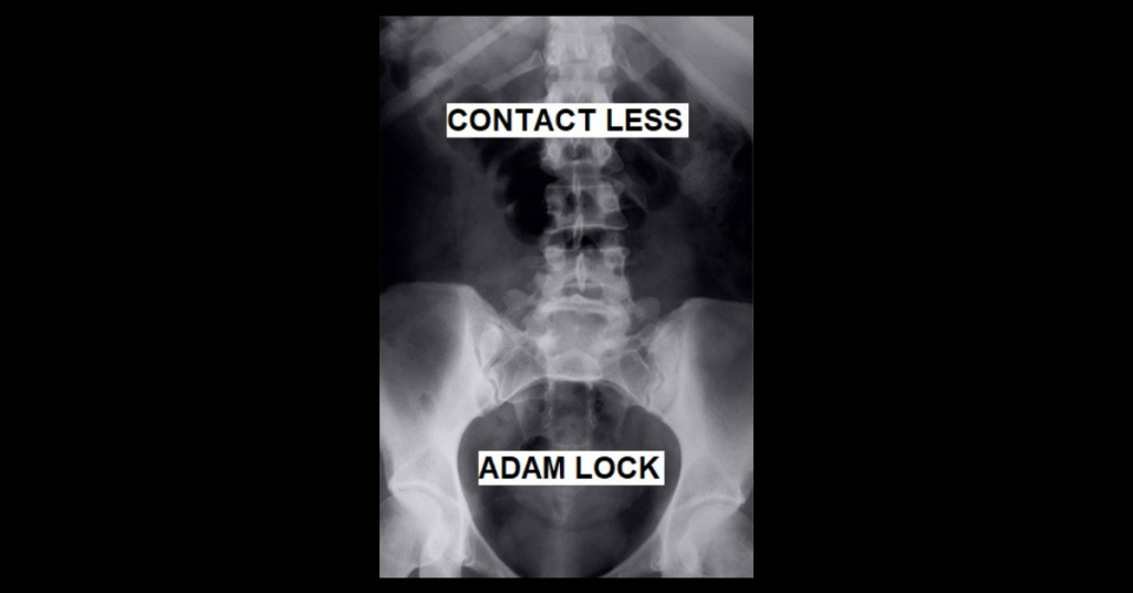 CONTACT LESS by Adam Lock