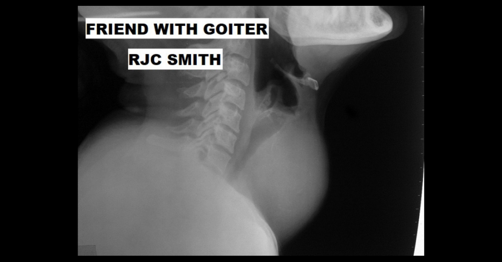 FRIEND WITH GOITER by RJC Smith