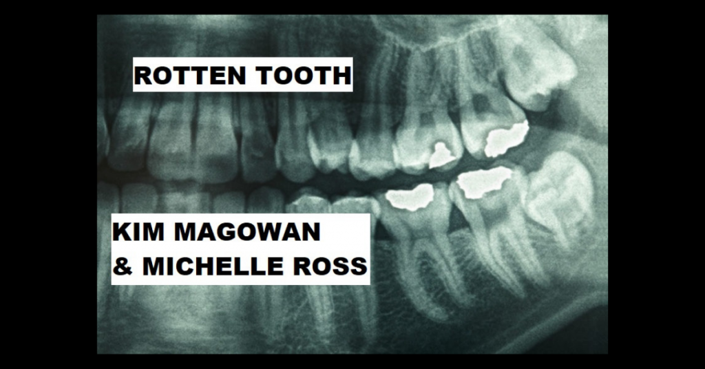 ROTTEN TOOTH by Kim Magowan & Michelle Ross