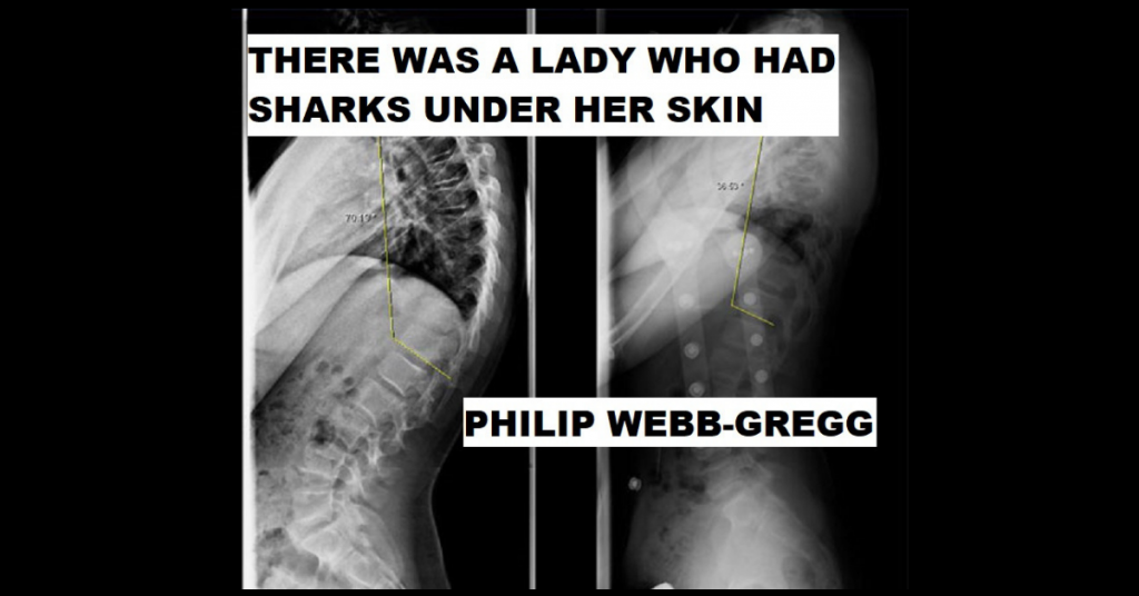 THERE WAS A LADY WHO HAD SHARKS UNDER HER SKIN by Philip Webb-Gregg