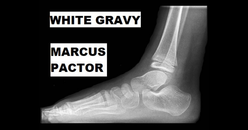 WHITE GRAVY by Marcus Pactor