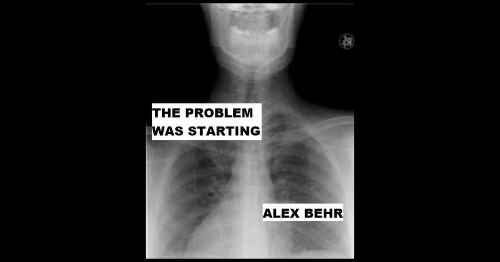 THE PROBLEM WAS STARTING by Alex Behr