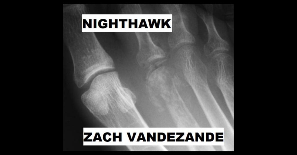 NIGHTHAWK by Zach VandeZande