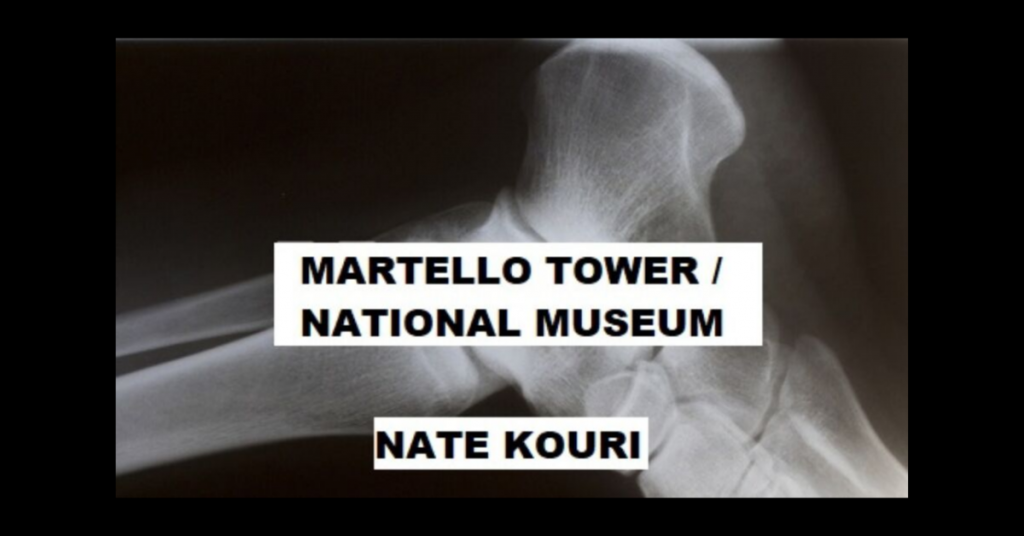MARTELLO TOWER / NATIONAL MUSEUM by Nate Kouri