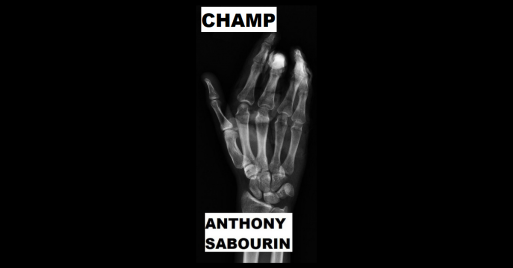 CHAMP by Anthony Sabourin