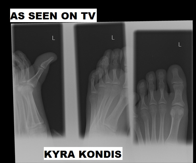 AS SEEN ON TV by Kyra Kondis